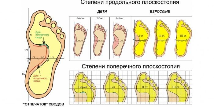 Степени продольного и поперечного плоскостопия
