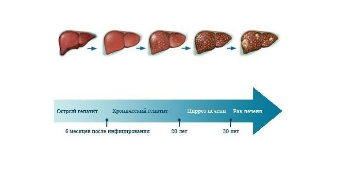 Патологические изменения печени при гепатите С