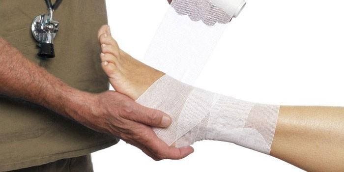 Наложение повязки на ногу