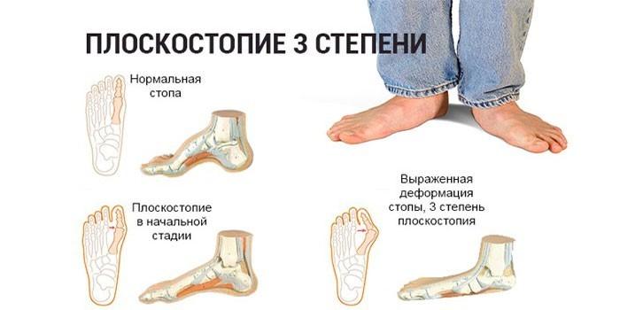 Нормальная стопа и выраженная деформации на третьей степени