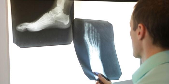 Человек рассматривает рентгеновский снимок стопы
