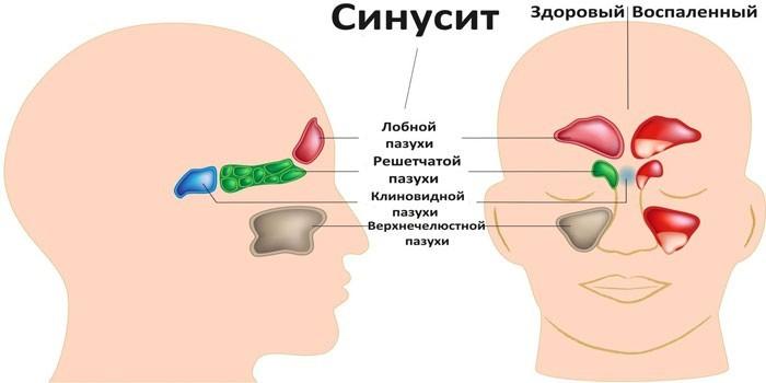 Проявления синусита