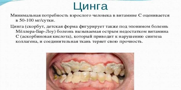 Цинга и зубной камень