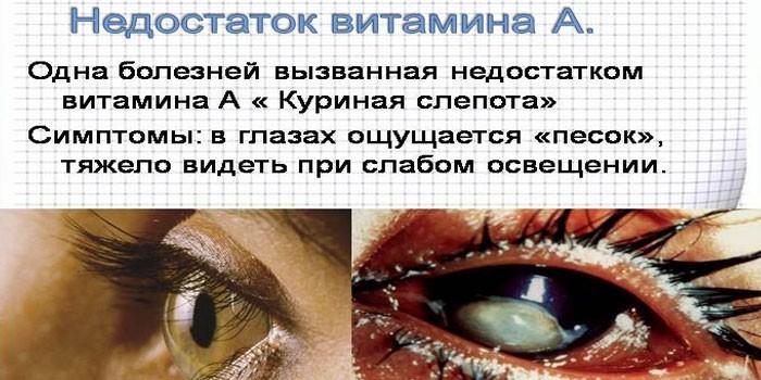 Здоровый глаз и гемералопия