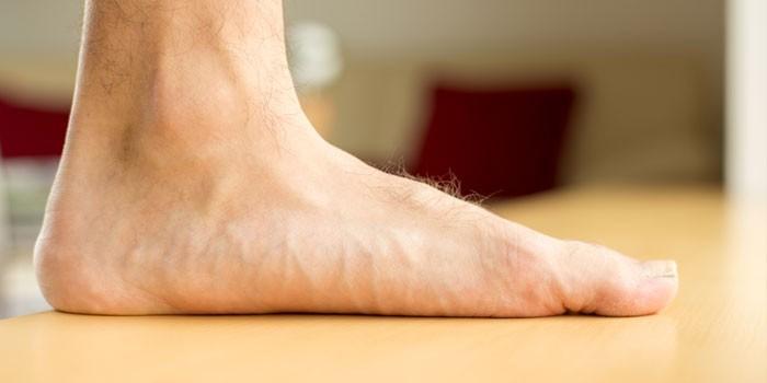 У человека плоская стопа