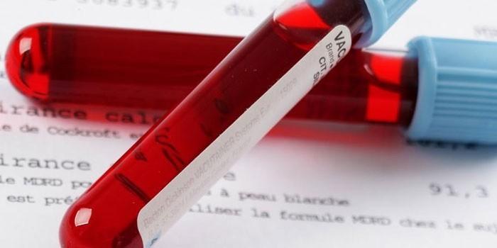 Анализ крови в пробирках