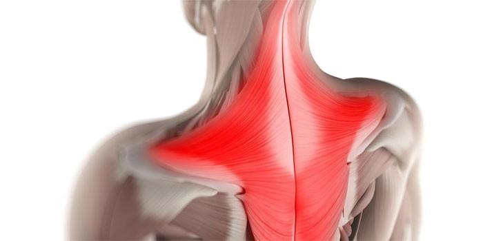 Мышцы шеи и спины