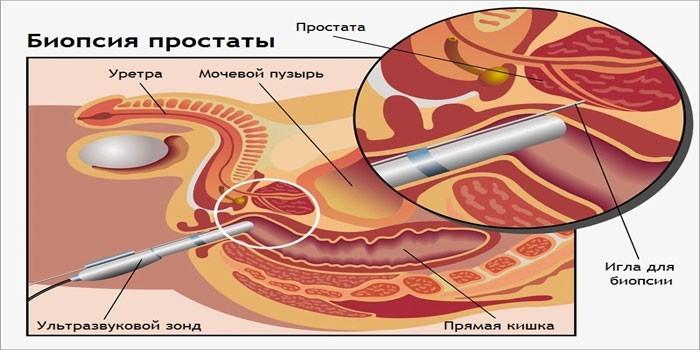Биопсия при аденоме простаты