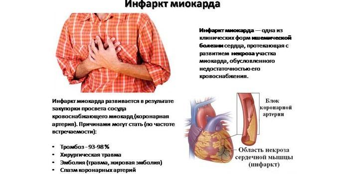 Симптомы и причины возникновения инфаркта миокарда
