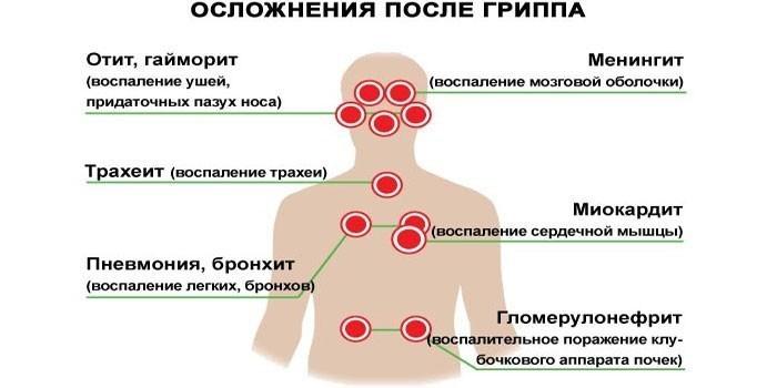 Действие вируса гриппа на органы и системы организма