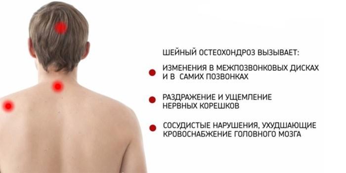 Осложнения остеохондроза шейного отдела позвоночника