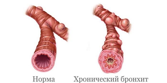 Бронхи в норме и при хроническом бронхите