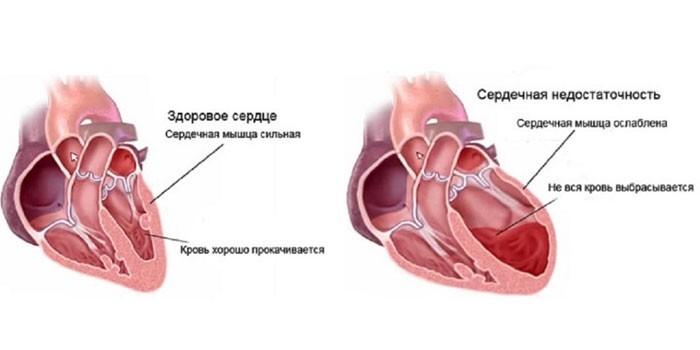 Здоровое сердце и сердечная недостаточность