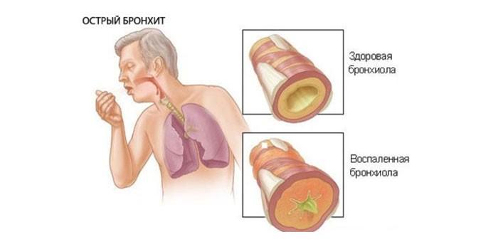 Здоровая и воспаленная бронхиола