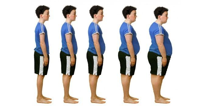 Степени и формы детского ожирения
