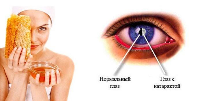 Мед и катаракта глаза