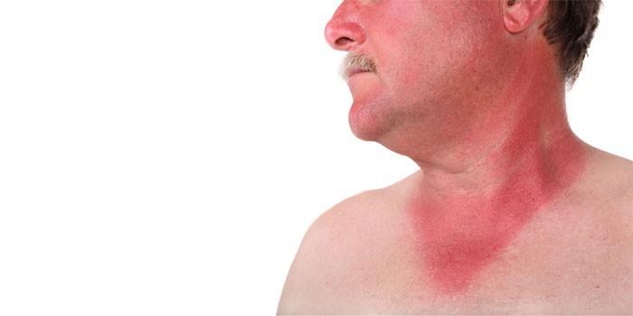 Геморрагическая сыпь на лице и шейно-воротниковой части