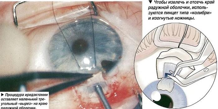 Оптическая иридэктомия