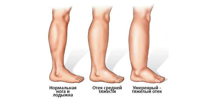 Степени отечности ног