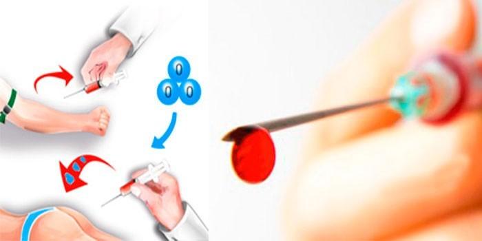 Схема проведения аутогемотерапия