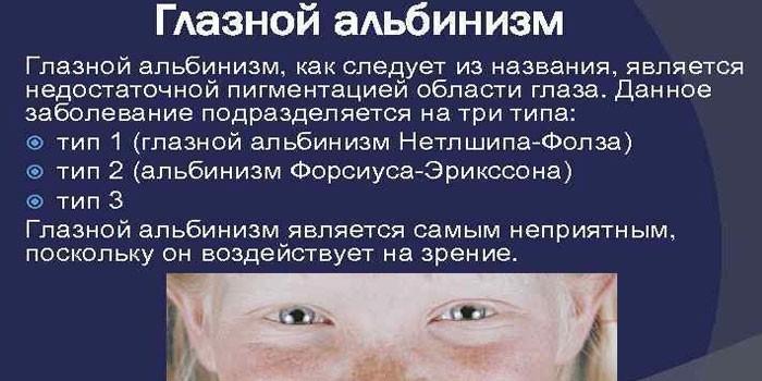 Глазной тип заболевания