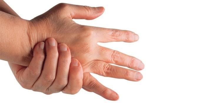 Симптомы артрита рук