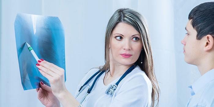 Медики изучают снимок легких