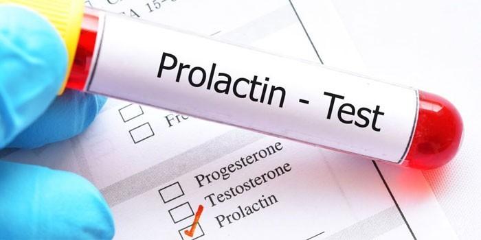 Анализы на пролактин