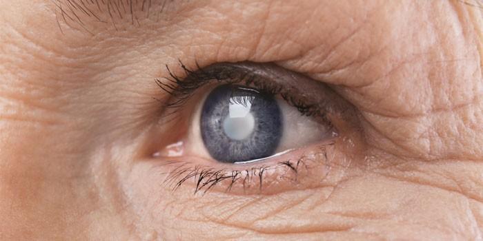 Помутнения хрусталика глаза