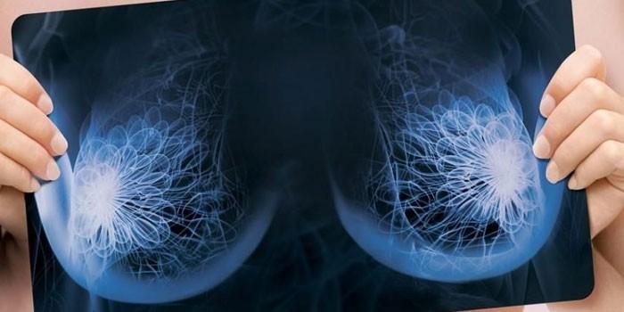 Рентгеновский снимок молочных желез