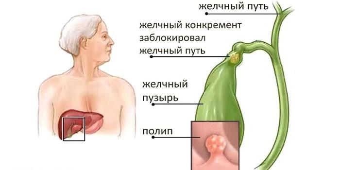 Полипоз желчного пузыря