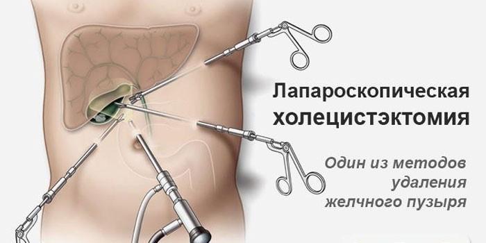 Проведение лапароскопической холецистэктомии