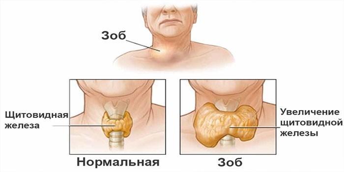 Увеличение долей щитовидки