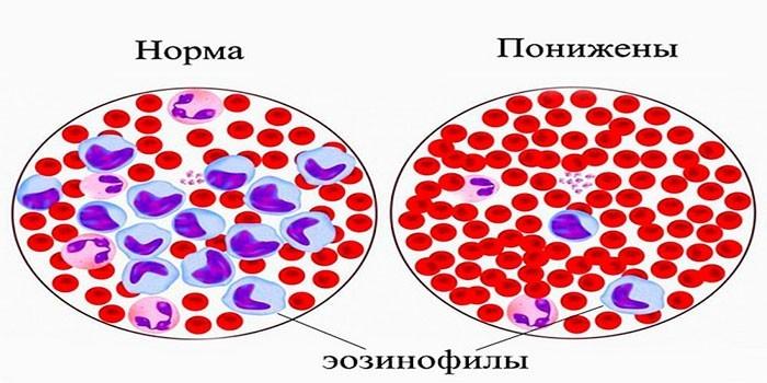 Снижение уровня эозинофилов