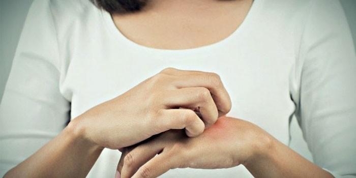 У женщины чешется рука