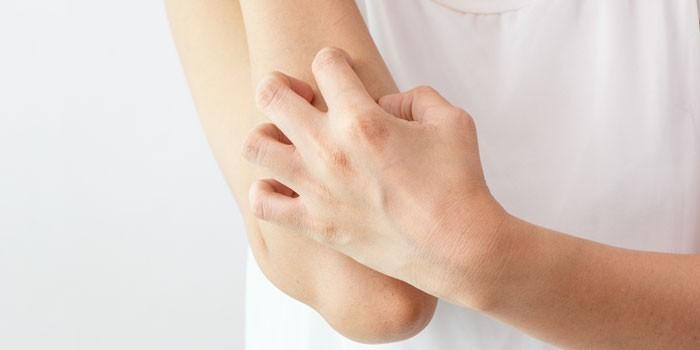 Женщина чешет кожу на руке