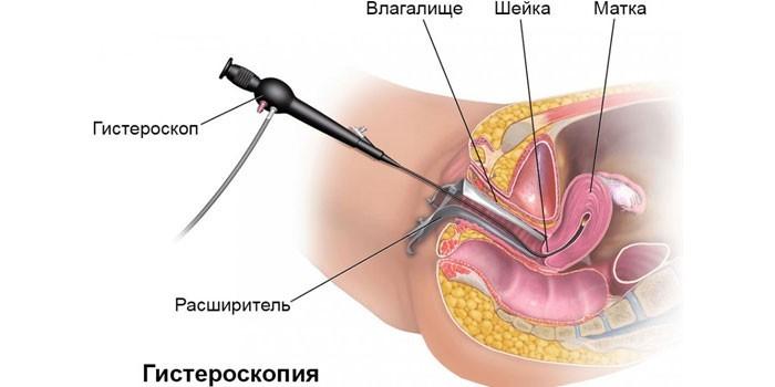 Схема проведения гистероскопии
