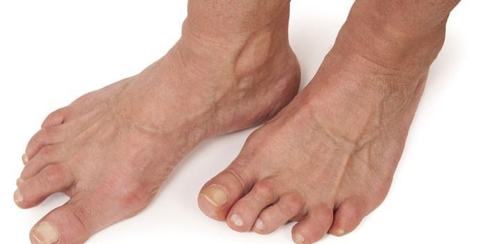 Воспаление суставов ступни