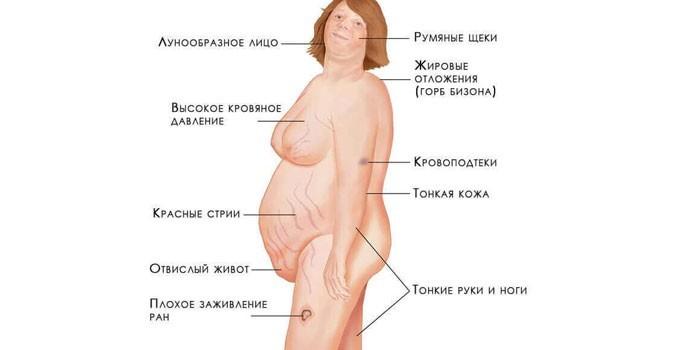 Проявления кортикостеромы