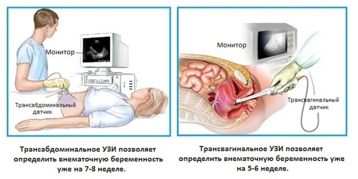 Диагностика внематочной беременности