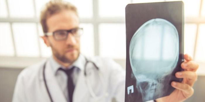 Врач изучает рентгеновский снимок