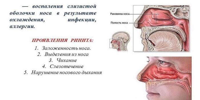 Симптомы холодового ринита