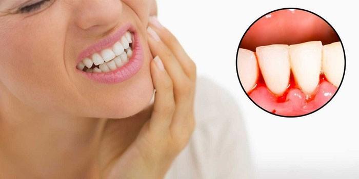 У женщины зубная боль