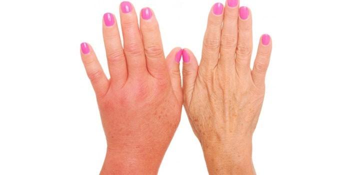 Отечная и нормальная рука