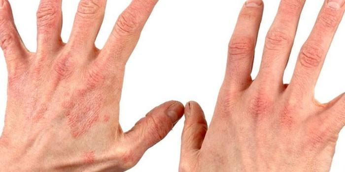Грибковый дерматит на кистях рук