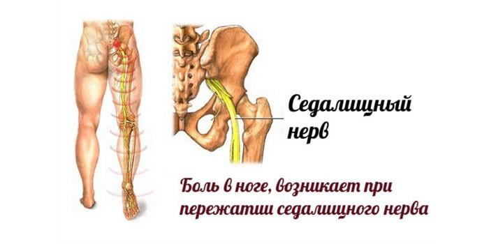 Боль в ноге при ущемлении седалищного нерва