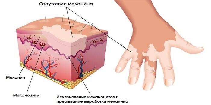 Отсутствие меланина на участках кожи