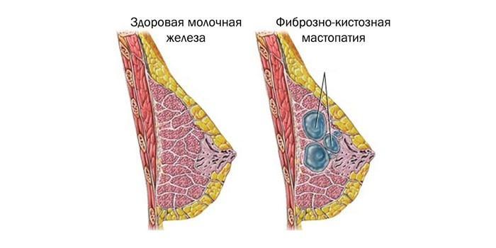 Здоровая молочная железа и фиброзно-кистозная мастопатия