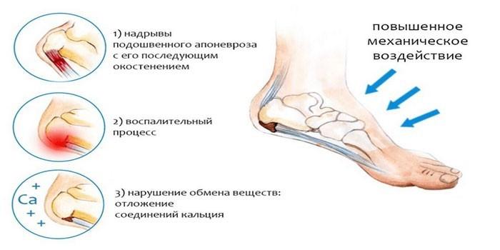 Причины болевых ощущений при ходьбе