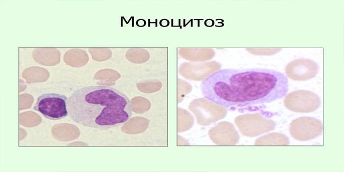 Относительный моноцитоз